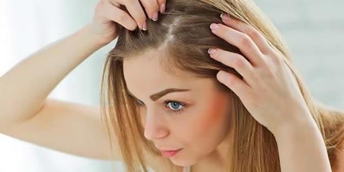 Remedios caseros para la caida del cabello en mujeres